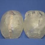 reconstructive surgery long island | Dr. Elliot Duboys