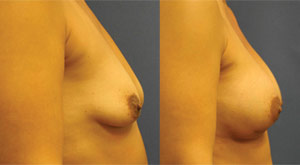 Before & After Photo: Breast Augmentation - Patient 2