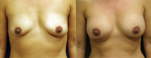 Before & After Photo: Breast Augmentation - Patient 1