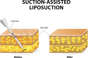 liposuction long island | Dr. Elliot Duboys Suffolk County