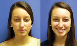 Before & After Photo: Rhinoplasty - Patient 3 (front)