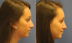 Before & After Photo: Rhinoplasty - Patient 3 (side)