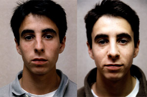Before & After Photo: Rhinoplasty - Patient 4 (front)