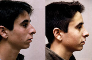 Before & After Photo: Rhinoplasty - Patient 4 (side)