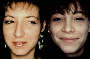 Before & After Photo: Rhinoplasty - Patient 5 (front)
