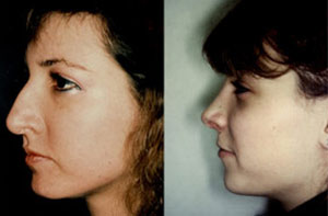 Before & After Photo: Rhinoplasty - Patient 5 (side)