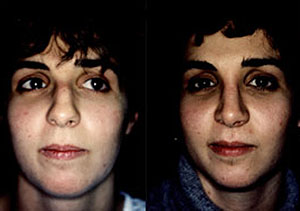 Before & After Photo: Rhinoplasty - Patient 6 (front)