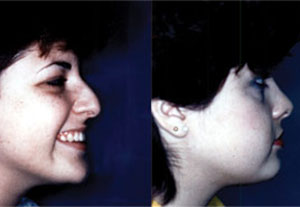 Before & After Photo: Rhinoplasty - Patient 7 (side)