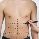 liposuction long island | suffolk county