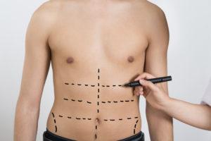 liposuction long island | suffolk county