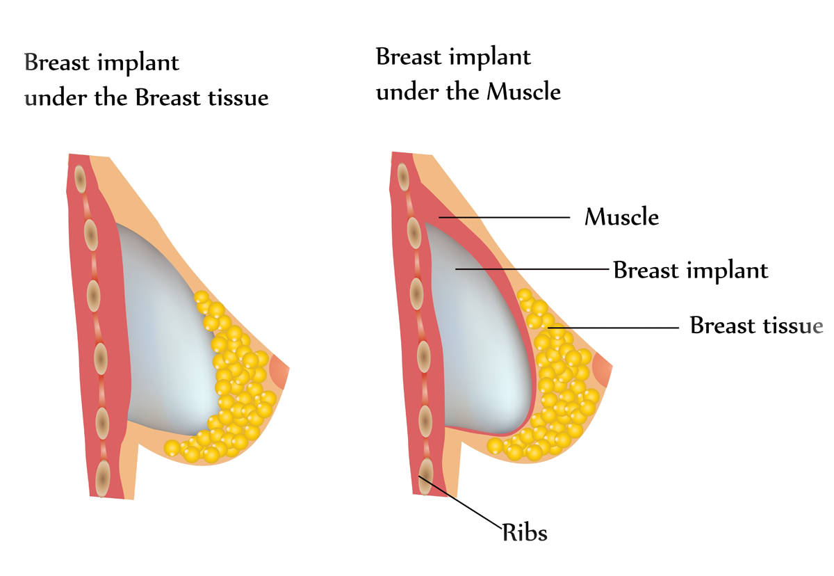 Breast Augmentation in Huntington Long Island