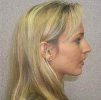 Rhinoplasty Before & After in Huntington, New York