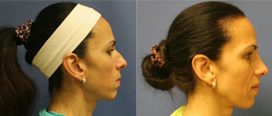 Before & After Photo: Rhinoplasty - Patient 1 (side)