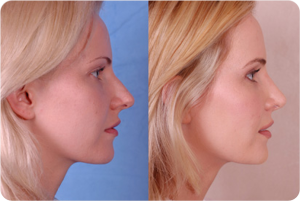 Before & After Photo: Rhinoplasty - Patient 2 (side)