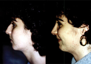 Before & After Photo: Rhinoplasty - Patient 6 (side)
