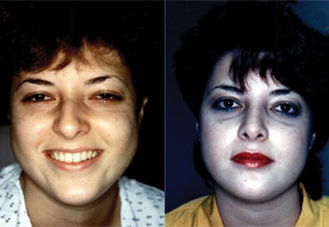 Before & After Photo: Rhinoplasty - Patient 7 (front)