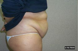 tummy tuck in huntington long island