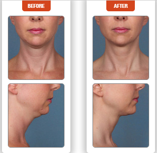 kybella long island | Associated Plastic Surgeons & Consultants
