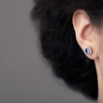 Otoplasty (Ear Surgery) Huntington, NY