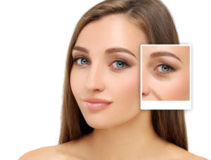 Eyelid Surgery Long Island, NY