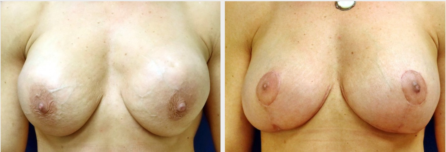 Breast Lift | Associated Plastic Surgeons | Huntington, LI