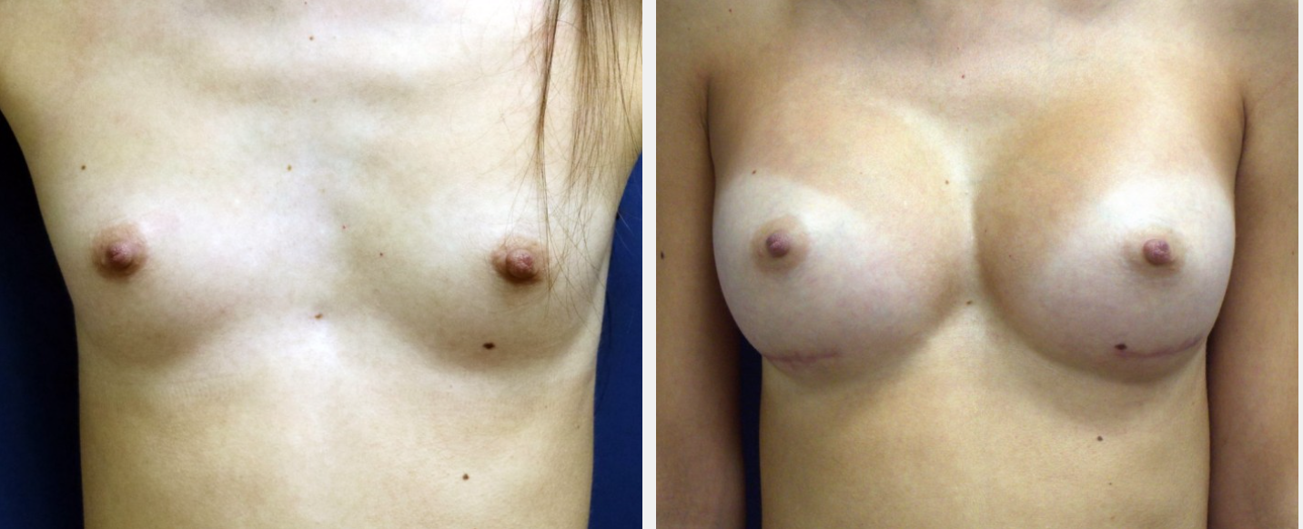 breast augmentation before and after Huntington NY